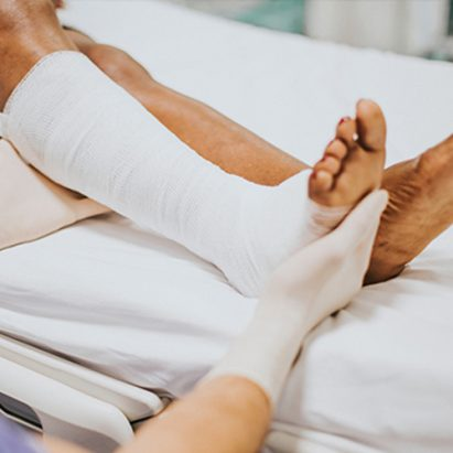 Leg recovery